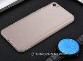 Xiaomi Mİ 5 5s 5x 6 Note 2 3 4 Redmi Note 4a 5a Mix2 Max2 Kapak-11