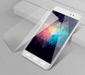 Xiaomi Note 4x A1 Mi 5x Tam Koruma Kılıf-7