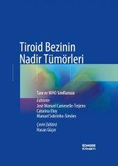 Tiroid Bezinin Nadir Tümörleri