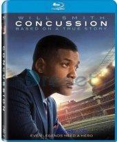 Concussion Doğruyu Söyle Blu Ray