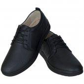 Siyah Lazer Motifli Ortopedik Diyabetik Bağcıklı Günlük Ayakkabı