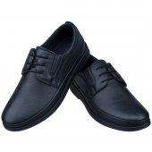 Siyah Baskılı Ortopedik Diyabetik Bağcıklı Klasik Erkek Ayakkabı