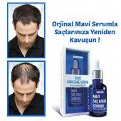 Luis Bien Mavi Saç Losyonu (İksir) 50 Ml Yeni Üretim + Dermoroller
