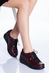 Hakiki Deri Ortopedik Kadın Ayakkabı Tmd991