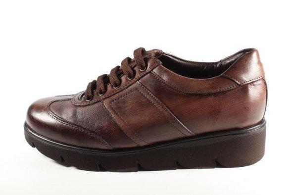 Su Gibi 23190 Vizon Antik Bayan Ayakkabı