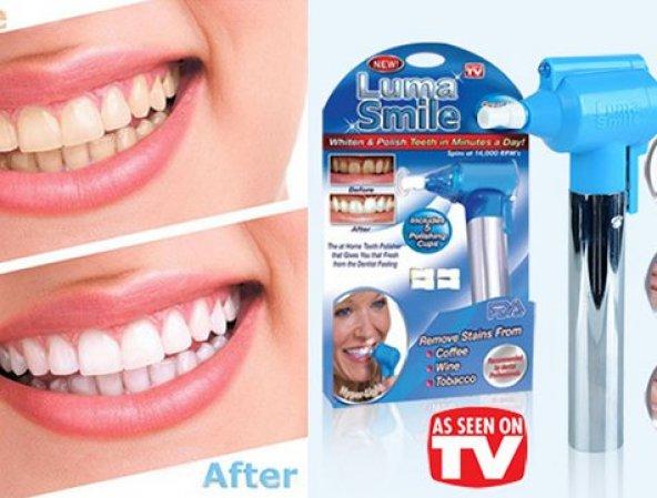 Diş Beyazlatma Seti Luma Smile