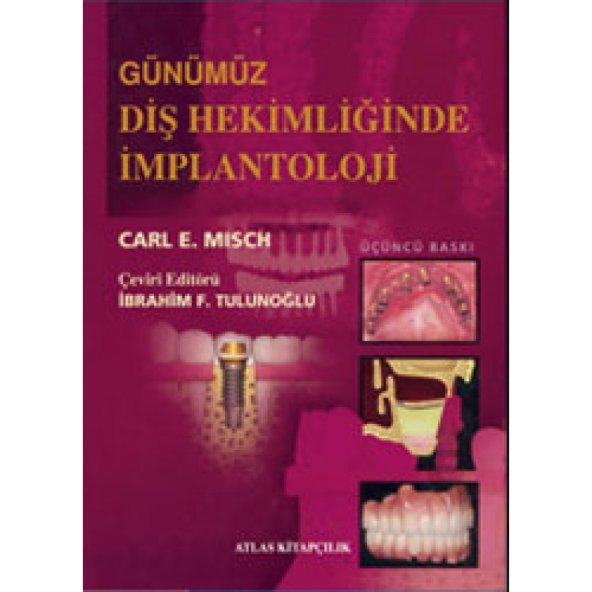 Günümüz Diş Hekimliğinde İmplantoloji